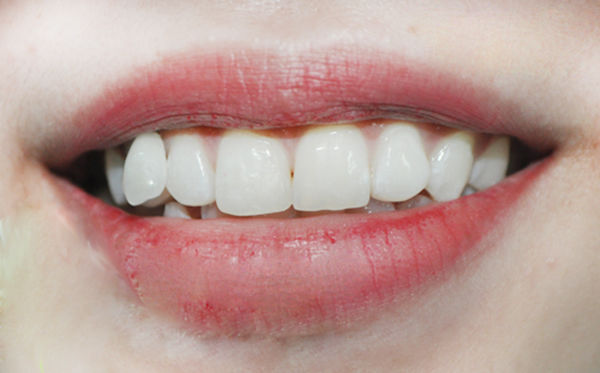 Nhìn hàm răng để biết cuộc đời có bao nhiêu thăng trầm, sướng khổ buồn vui